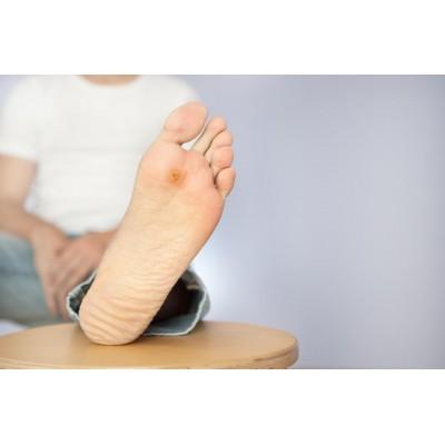 Диабетическая стопа. Причины, симптомы, профилактика. Как правильно ухаживать за диабетической стопой?