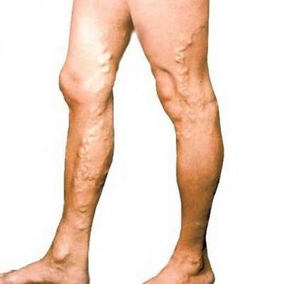 Варикозная болезнь нижних конечностей: основные симптомы, стадии и лечение